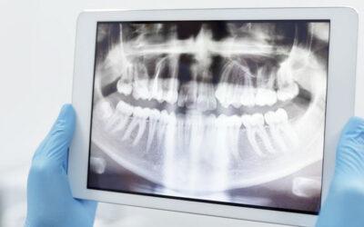 Come scegliere il dentista: 5 consigli utili