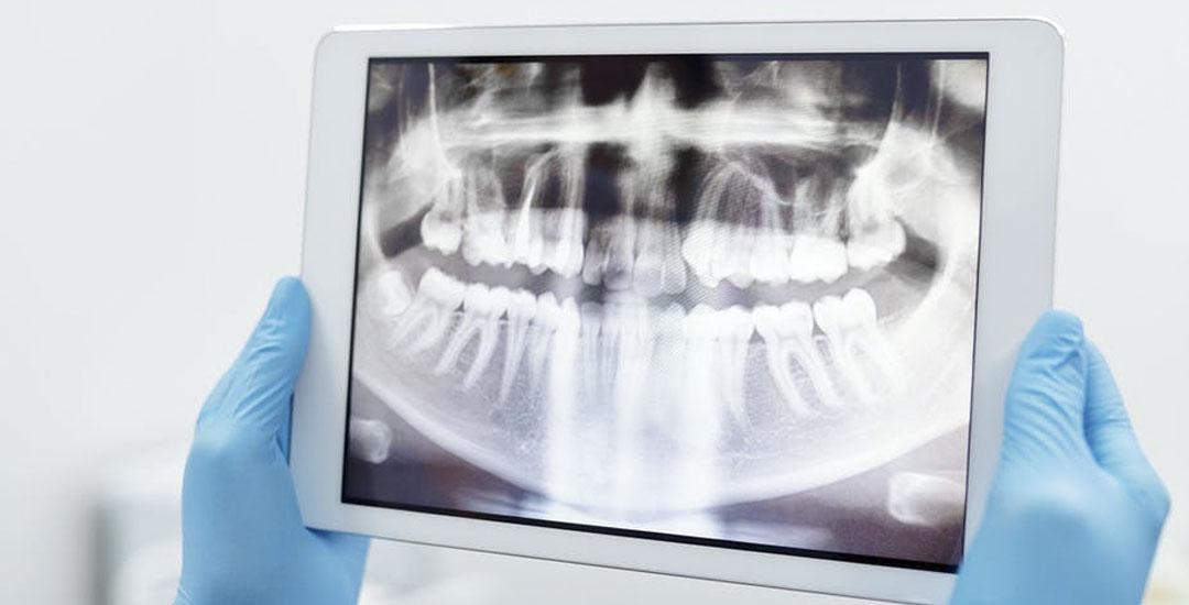 Come scegliere il dentista