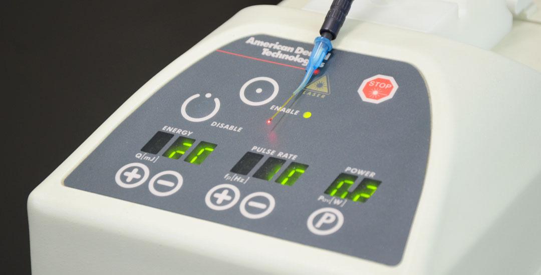 Laser in odontoiatria: tutti i vantaggi
