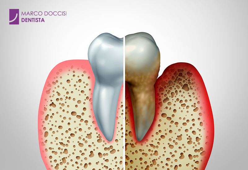 Malattia parodontale - Parodontite cura