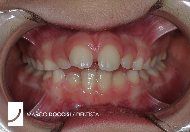 Ortodonzia bambini Firenze