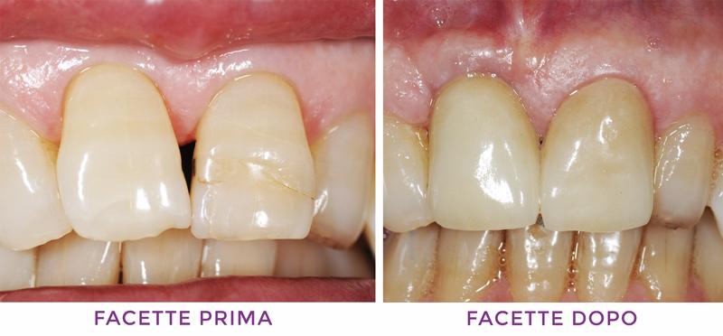 Protesi dentali Firenze