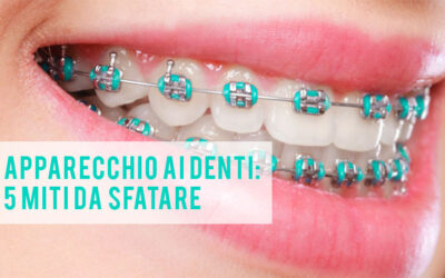 Ortodonzia: 5 miti da sfatare sull'apparecchio ai denti