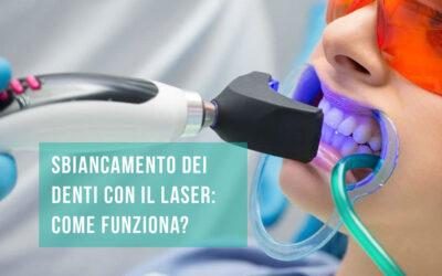 Sbiancamento denti laser: come funziona?