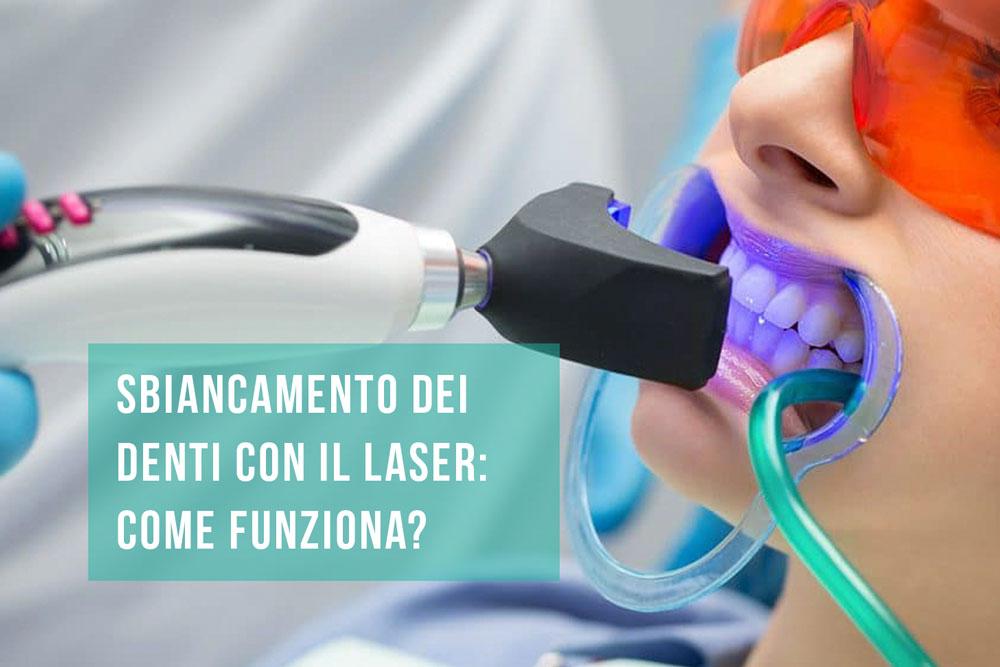 sbiancamento denti laser