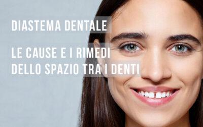 Diastema denti: cause e rimedi dello spazio tra i denti