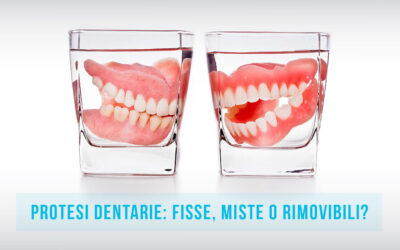 Protesi dentarie: fisse, miste o rimovibili?